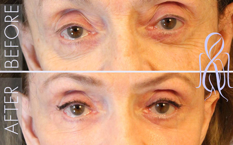 Blepharoplasty_Before_After_Atlanta_Face_Body