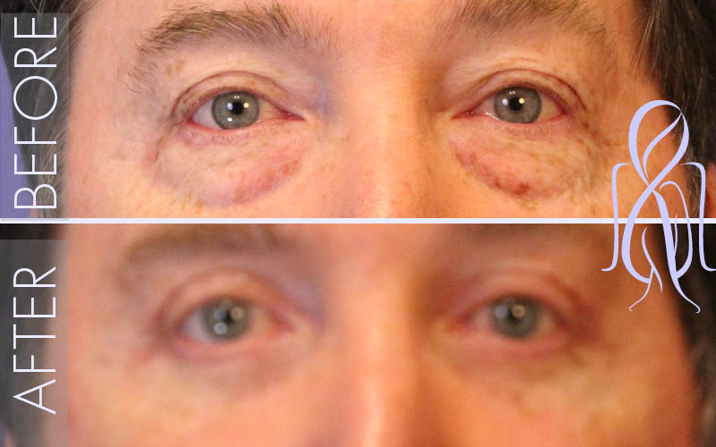 Blepharoplasty_Before_After_Atlanta_Face_Body10
