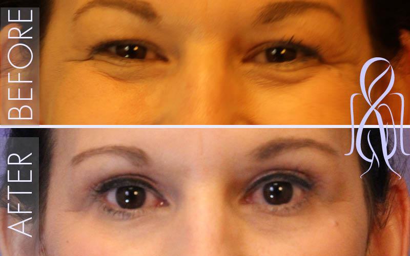 Blepharoplasty_Before_After_Atlanta_Face_Body11