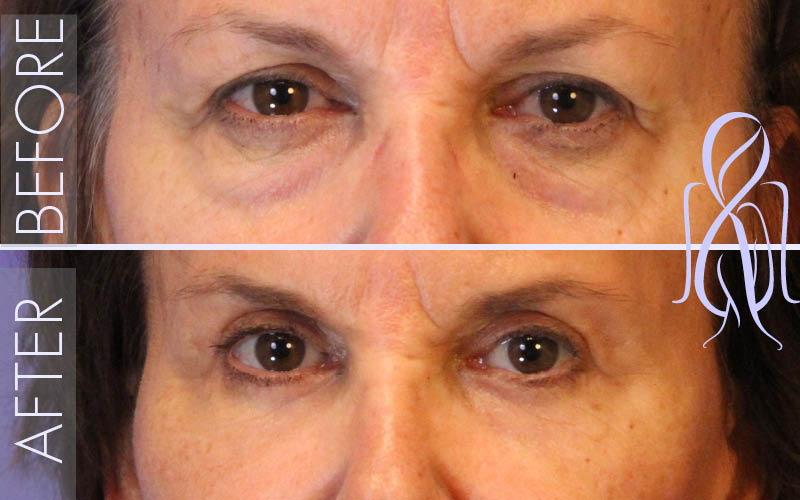 Blepharoplasty_Before_After_Atlanta_Face_Body12