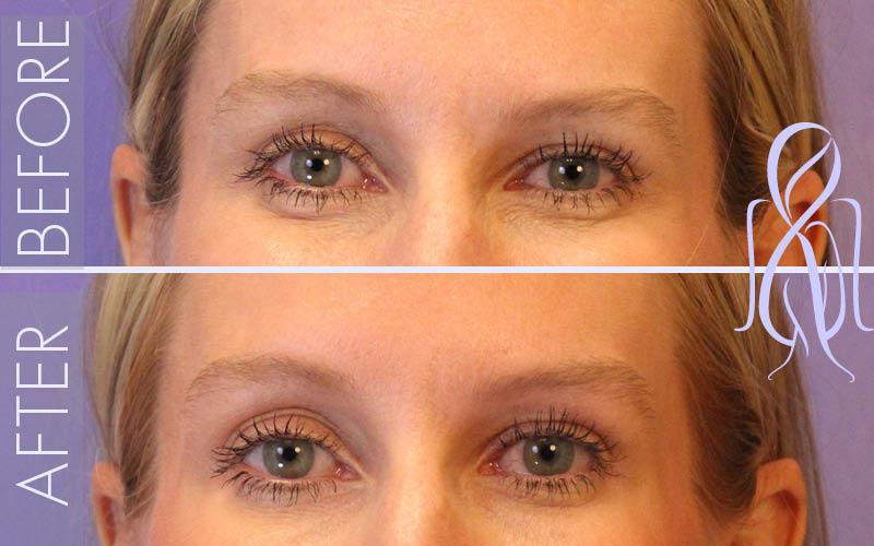 Botox-Horizontal_Before_After_Atlanta_Face_Body2