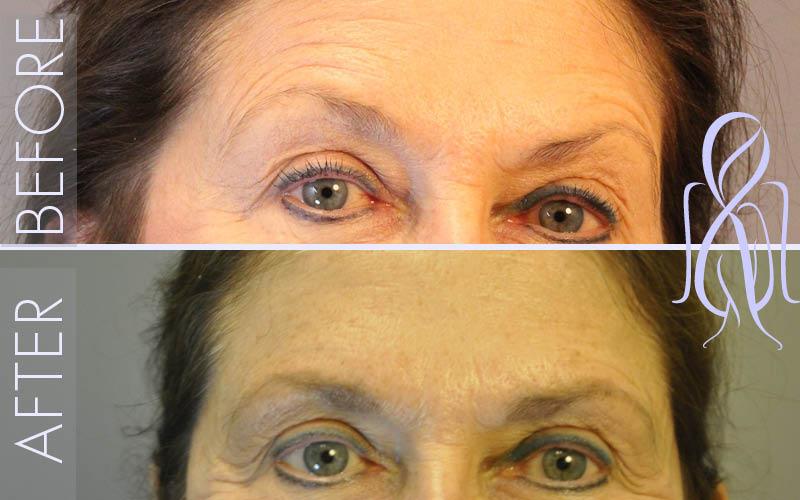 Botox-Horizontal_Before_After_Atlanta_Face_Body3