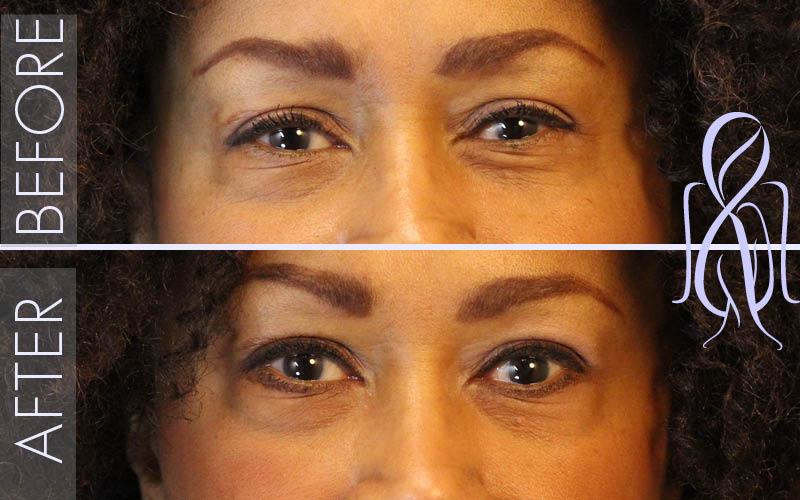Botox-Horizontal_Before_After_Atlanta_Face_Body4