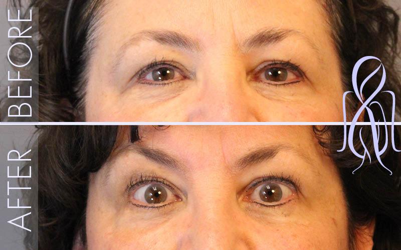 Botox-Horizontal_Before_After_Atlanta_Face_Body5
