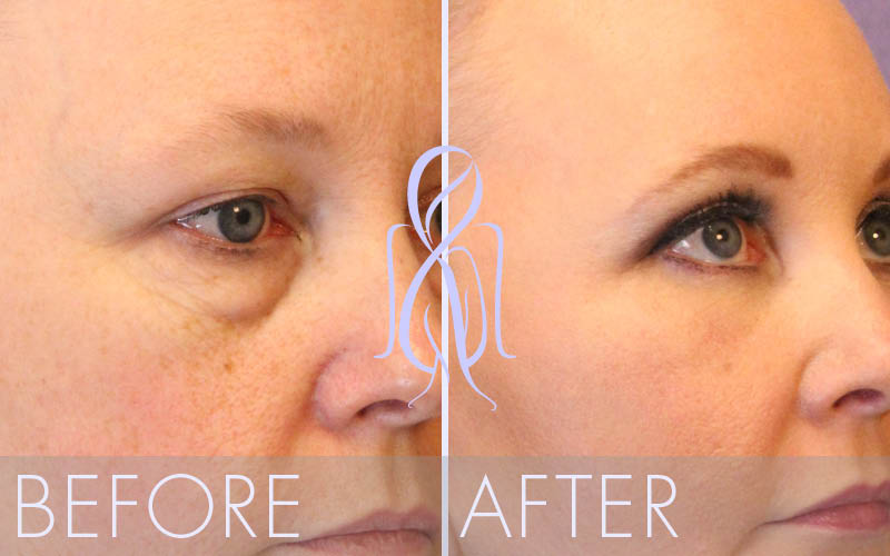 Brow_Lift_Vertical_Before_After_Atlanta_Face_Body2