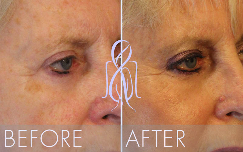 Brow_Lift_Vertical_Before_After_Atlanta_Face_Body3