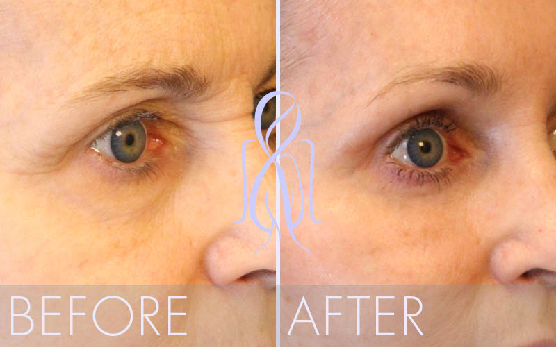Brow_Lift_Vertical_Before_After_Atlanta_Face_Body4