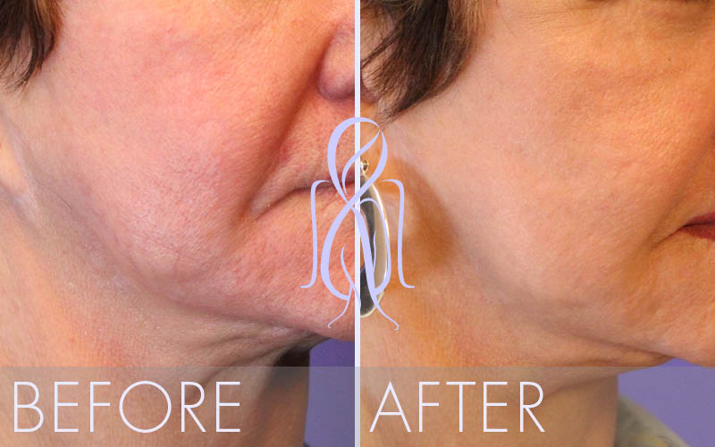 Fat_Transfer_Before_After_Atlanta_Face_Body13