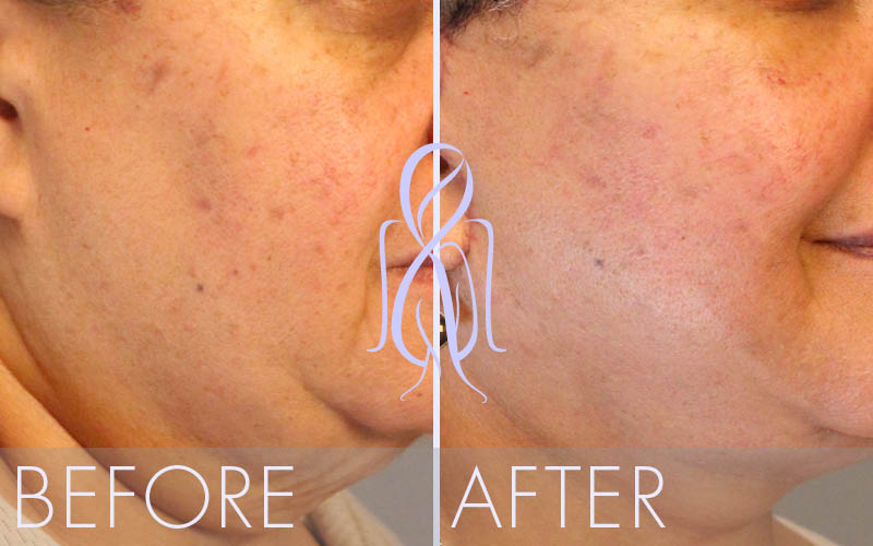 Fat_Transfer_Before_After_Atlanta_Face_Body14