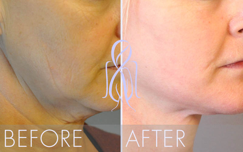 Fat_Transfer_Before_After_Atlanta_Face_Body15