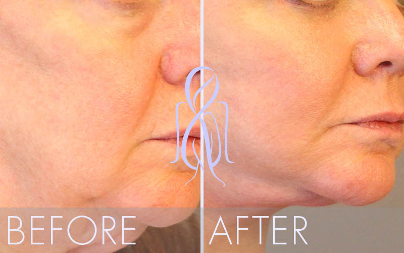 Fat_Transfer_Before_After_Atlanta_Face_Body19
