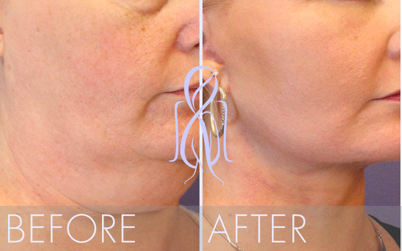 Fat_Transfer_Before_After_Atlanta_Face_Body5