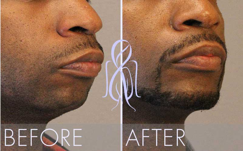 Precision_Lift_Before_After_Atlanta_Face_Body96