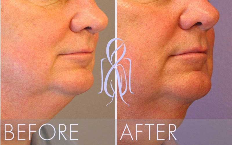 Precision_Lift_Before_After_Atlanta_Face_Body99