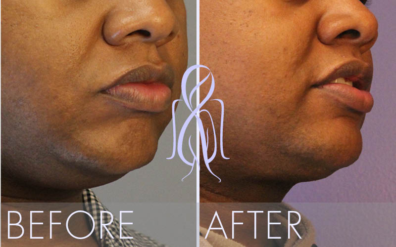 Profile_Lift_Before_After_Atlanta_Face_Body2