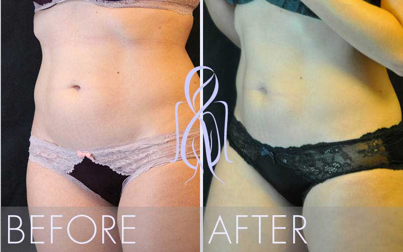 SculpSure_Before_After_Atlanta_Face_Body