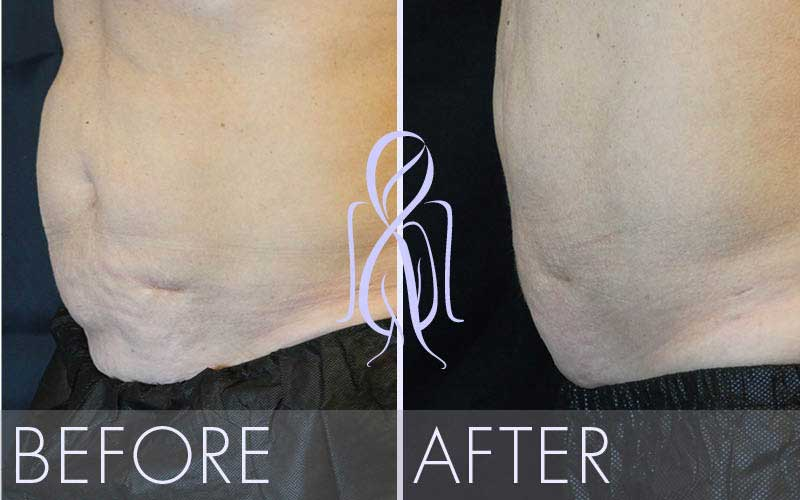 SculpSure_Before_After_Atlanta_Face_Body3