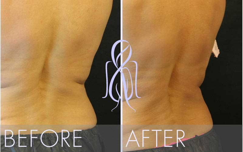 SculpSure_Before_After_Atlanta_Face_Body4