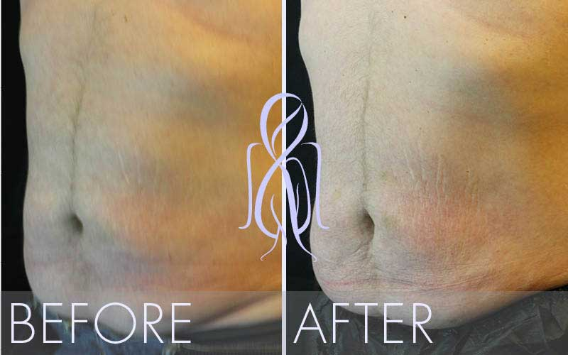 SculpSure_Before_After_Atlanta_Face_Body8