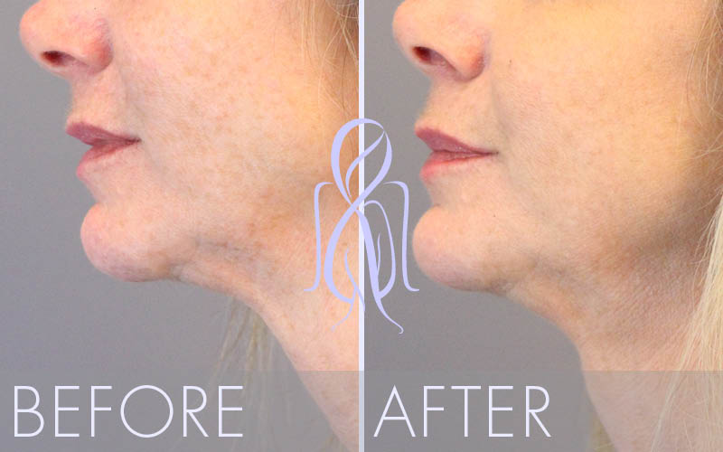 Ultherapy_Before_After_Atlanta_Face_Body2