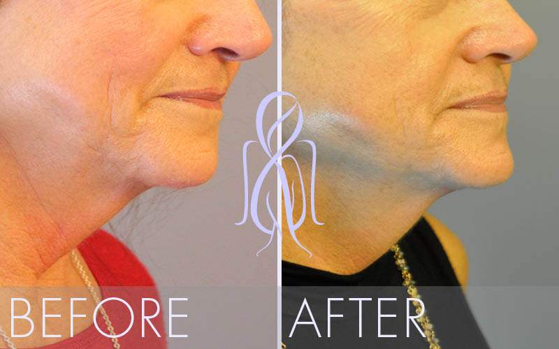 Ultherapy_Before_After_Atlanta_Face_Body3