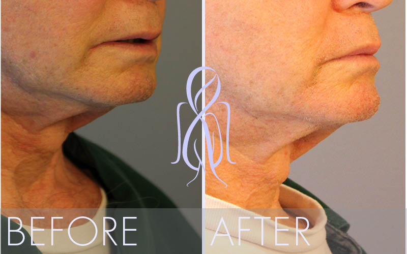 Ultherapy_Before_After_Atlanta_Face_Body4