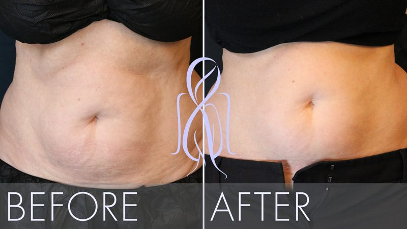 afb_Sculpsure_Before_After_yeffu1