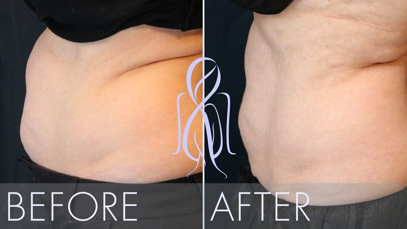 afb_Sculpsure_Before_After_yeffu3
