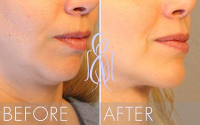 Chin_Implant_Before_After_Atlanta_Face_Body2
