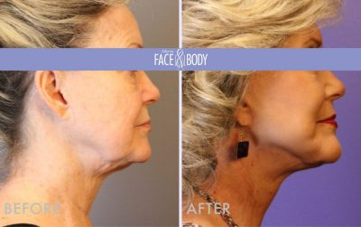 afb_SigLift_Atlanta_Face_Body_bb_rightprofile
