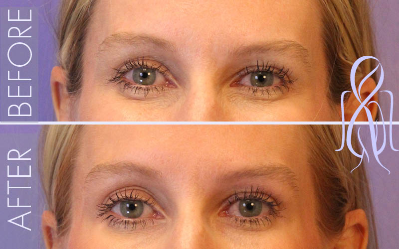 the effect of botox typically lasts three to four months before full muscle movement returns at that point the treatment may be repeated as desired