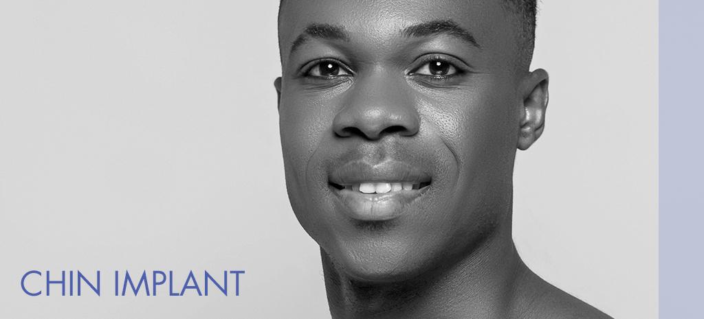 Chin Implant Men Atlanta