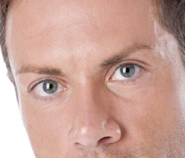 Eyelid Lift for Men