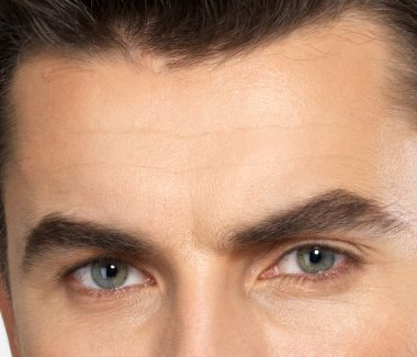 Forehead Lift for Men