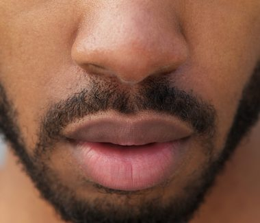 Lip Reduction for Men