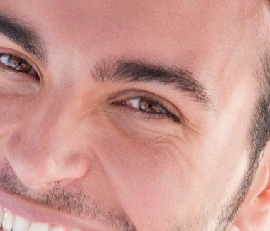 Men's Lower Eyelid Lift
