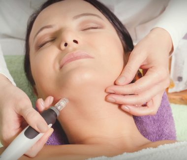 Why You Need Microneedling to Achieve Flawless Skin