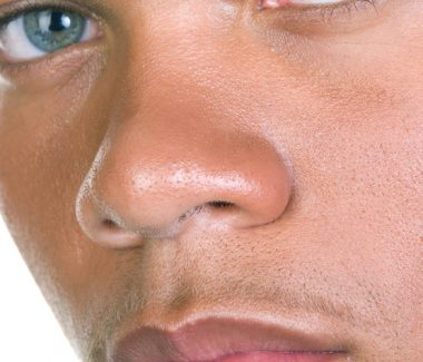 Nonsurgical Rhinoplasty for Men
