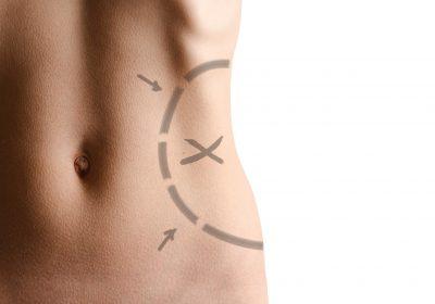 8 Things You Need to Know About Liposculpture