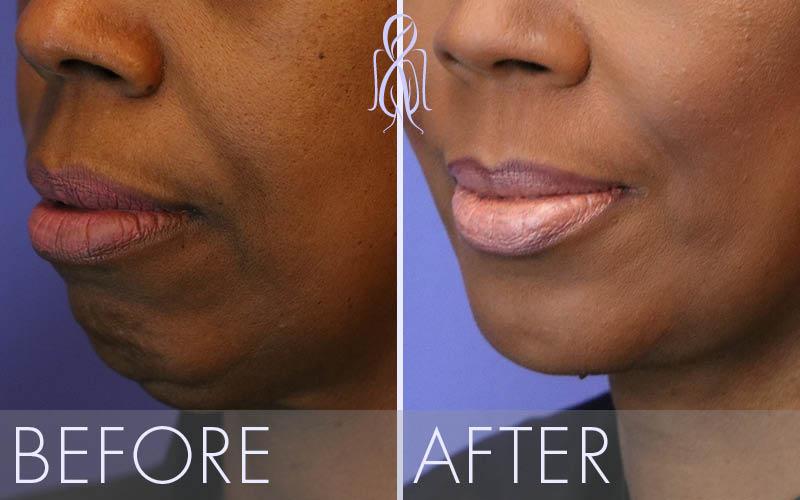 Achieve Facial Balance With Chin Augmentation Atlanta Face