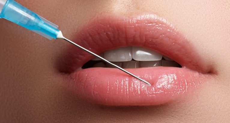 Woman Receiving Lip Injectable